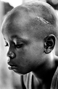 "June 2000, Freetown, Sierra Leone. Ali Kondo, 10-years-old, was with the RUF for two years. His Commander, known as ""Killer"" was beating him because he couldn't carry an AK 47 assault rifle. The scar on his head is the result of a machete used by his commander when he cried as the other children in his unit killed his father. © Franco Pagetti"